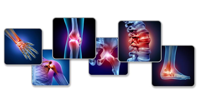 Curcumin er en kraftig antioxidant, der kan 'smøre' led og gøre dem mere fleksible.