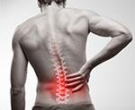 Smerter i ryggen
